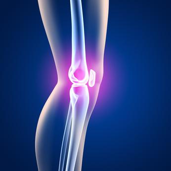 Kniearthritis - 3D Grafik