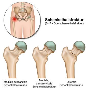 Schenkelhalsbruch operation