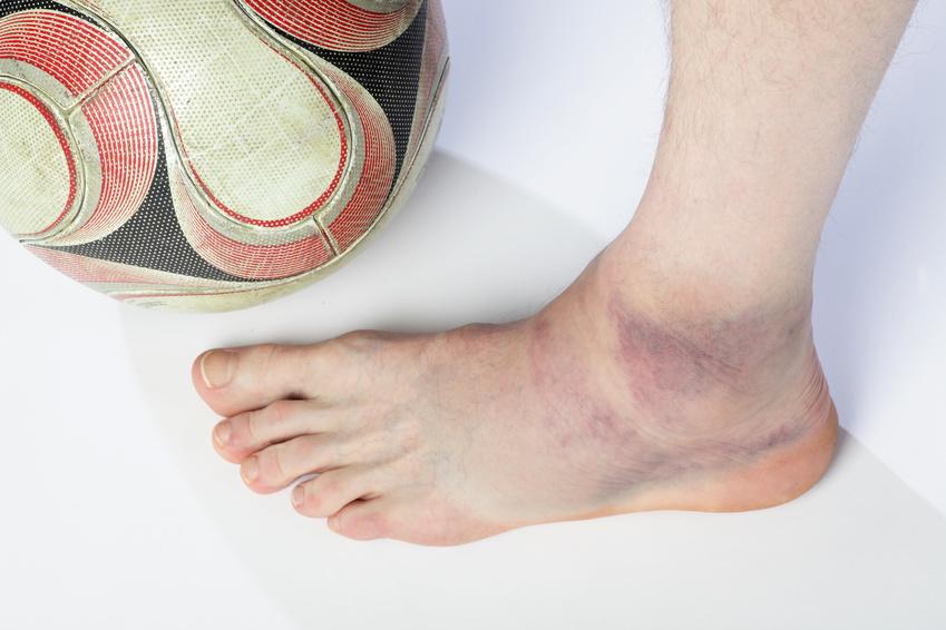 Bänderriss im Sprunggelenk - Symptome und Behandlung