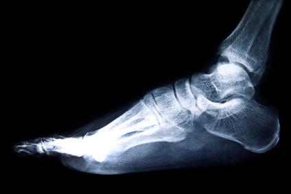 Sprunggelenk / Fußgelenk Röntgenbild