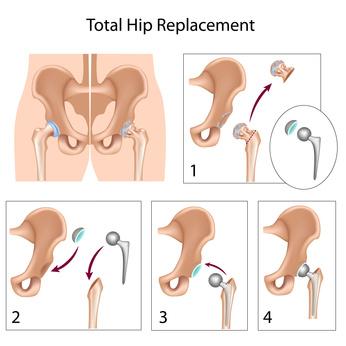 Hüft-TEP Operation