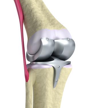 Nieuwe techniek knieprothese