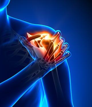 Schulterschmerzen durch Frozen Shoulder