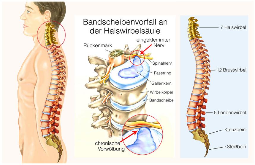 Bandscheibenvorfall HWS & LWS - Symptome & Behandlung