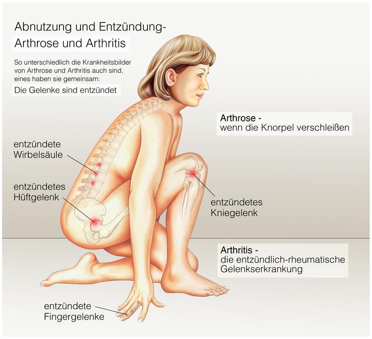 Was ist der Unterschied zwischen Arthrose, Arthritis und Rheuma?