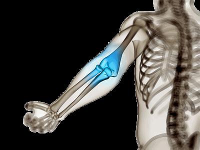 Arthritis im Ellenbogengelenk