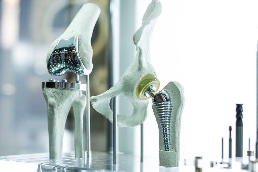 Knieendoprothese