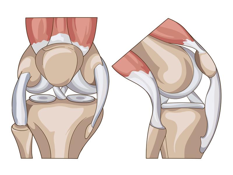 Kniegelenk mit Aussenmeniskus, Innenmeniskus und Bändern
