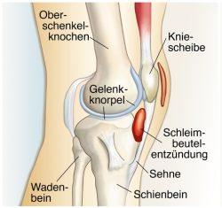 Schleimbeutelentzündung Knie
